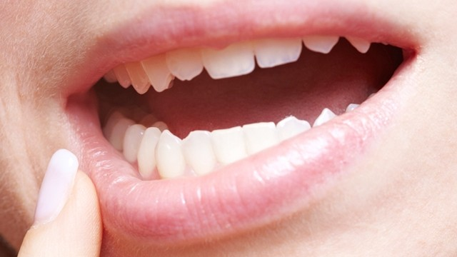Homemade Remedies For Gum Disease (13)